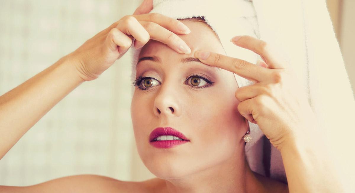 comment traiter les boutons d'acné naturellement